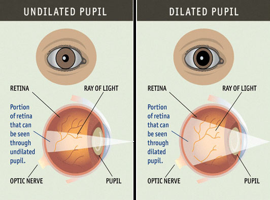 dilated pupil diagram